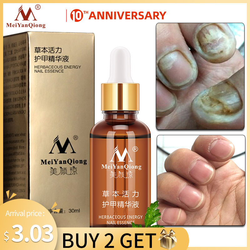 NEW!!!Fungal Nail Treatment Essence Nail and Foot Whitening Toe Nail Fungus Removal Feet Care Nail Gel Free Shipping
