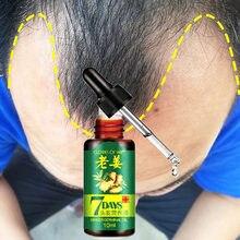 Cabelo mais rápido rebrota soro de óleo de gengibre tratamento perda de cabelo impedindo alopecia calvície cuidados capilares crescendo soro mais grosso 10ml