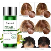 Hair Care Growth Anti Hair Loss Prevent Health Care Beauty Dense Hair Growth Serum Products