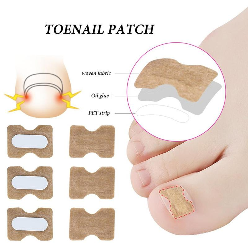 10pcs Nail Correction Sticker  Ingrown Toenail Corrector Stickers Paronychia Treatment Recover Corrector Pedicure Tools