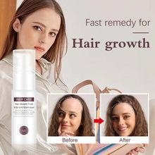 Hair Growth Serum Essence Oil Anti Hair Loss Spray for Hair Growth Hair Loss Treatment Natural Oil Beauty Hair Care Hair Tonic cheap 20160342 Hair Loss Product for Hair Growth Anti Hair Loss yfy14 1 bottle 30ml