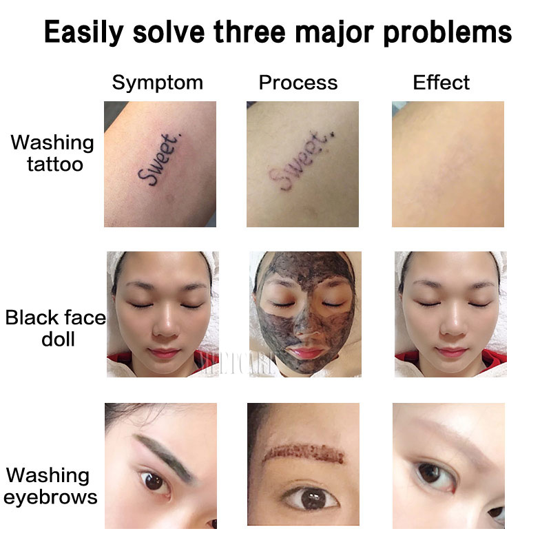 1064nm 532nm 1320nm ND YAG Laser Tattoo Removal Eyebrow Pigment Eyebrow Line Beauty Machine Salon Center Device With Red Pointer