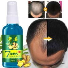 30ml Hair Growth Serum for Women and Men Anti preventing Hair Loss alopecia Liqu