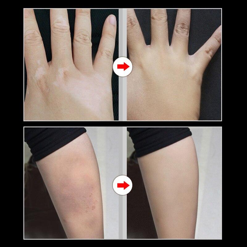 2 Pcs Skin Make-up Concealer Cream Tattoo Scar Birthmark Cover-up Cream LDO99