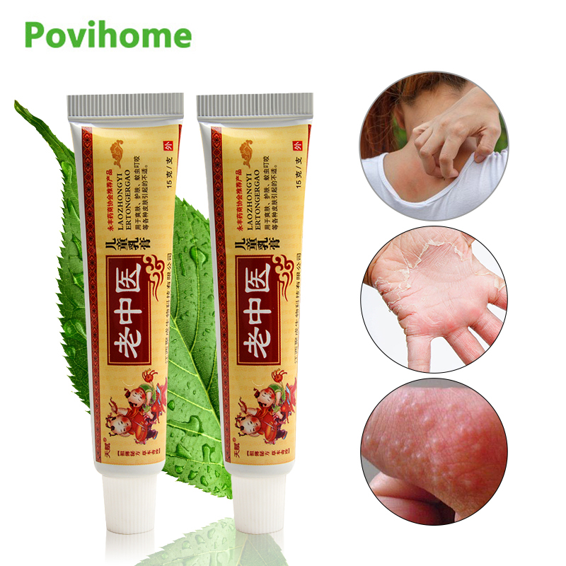 1pcs Traditional Chinese Medicine Ointment Baby Adult Professional Mild Antibacterial Cream For Psoriasis Pruritus Eczema P1086