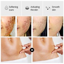 VIBRANT GLAMOUR Crocodile Repair Scar face serum Removal Whitening For Spots Acne Skin Marks Scar Care Acne Stretch Treatme V5A1