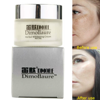 Dimollaure Strong effect whitening cream 20g Retinol Remove Freckle melasma Acne Spots pigment Melanin face care cream by Dimore skin whitening cream freckle cream remove melasma acne dark pigment spots melanin pimple cream face cream face serum skin care