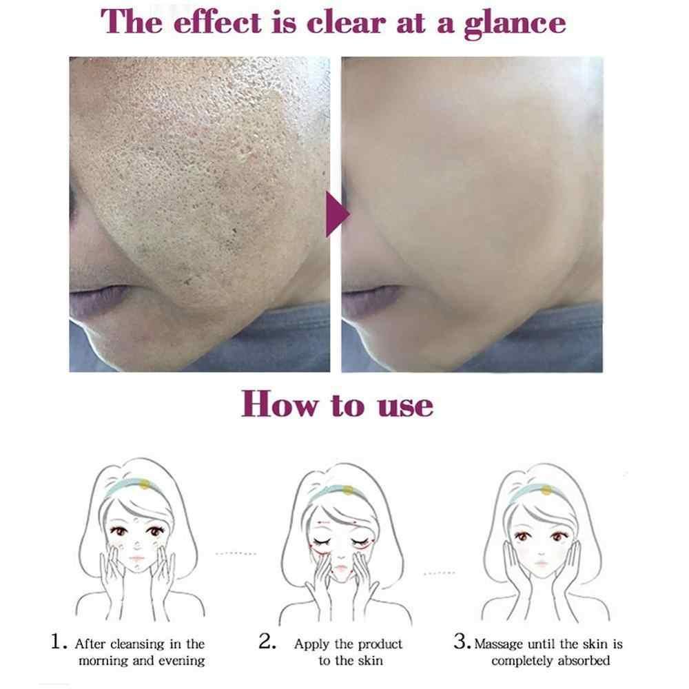Obat Cina Tradisional Pengobatan Jerawat Shrink Whitening Pelembab Pori-pori Krim Krim Gel Pemutihan Wajah Tempat H8Y6