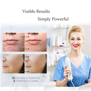Image 3 - Beleza estrela 7 em 1 removedor facial, máquina de eletrodo, varinha de vidro, removedor de acne, alta frequência, cuidados com a pele, spa facial