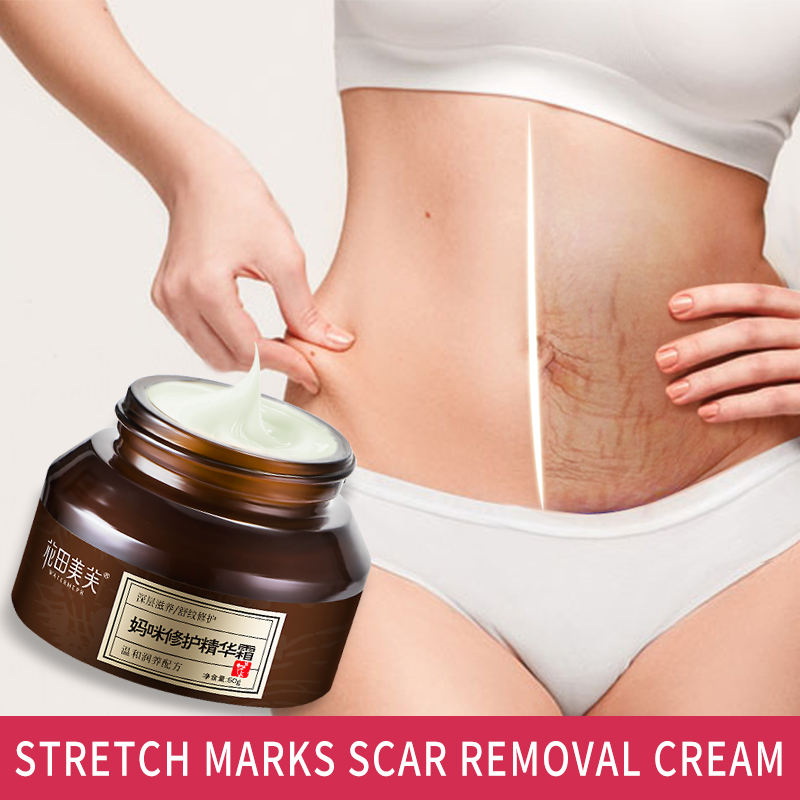 WATIANMPH Stretch Marks Removal Maternity Firming Cream Anti-wrinkle Cream Pregnancy Repair Body Cream Women's Scar Removal  50g