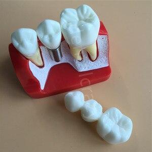 Image 2 - Diş öğretme İmplant analizi taç köprü çıkarılabilir modeli diş gösteri diş modeli
