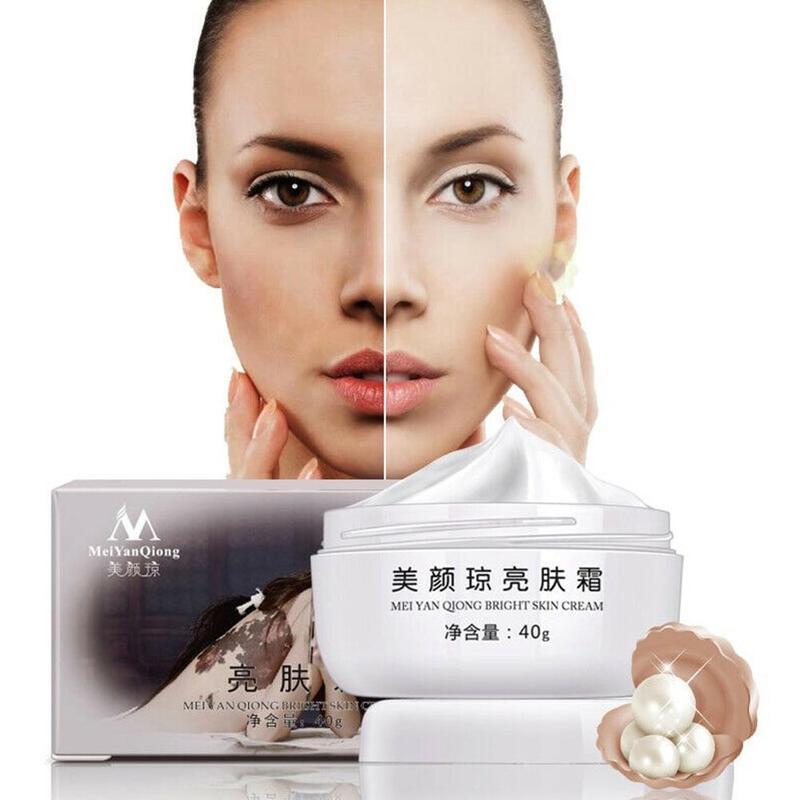 40g Whitening Cream Remove Melasma Acne Spots Pigment Sunburn Pregnancy Spots Face Care Cream Facial Moisturizing Cream