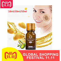 Whitening Essential Oil Brightening Spotless Oil Skin Care Dark Spots Remove Ance Burn Strentch Marks Scar Removal Essence TSLM1