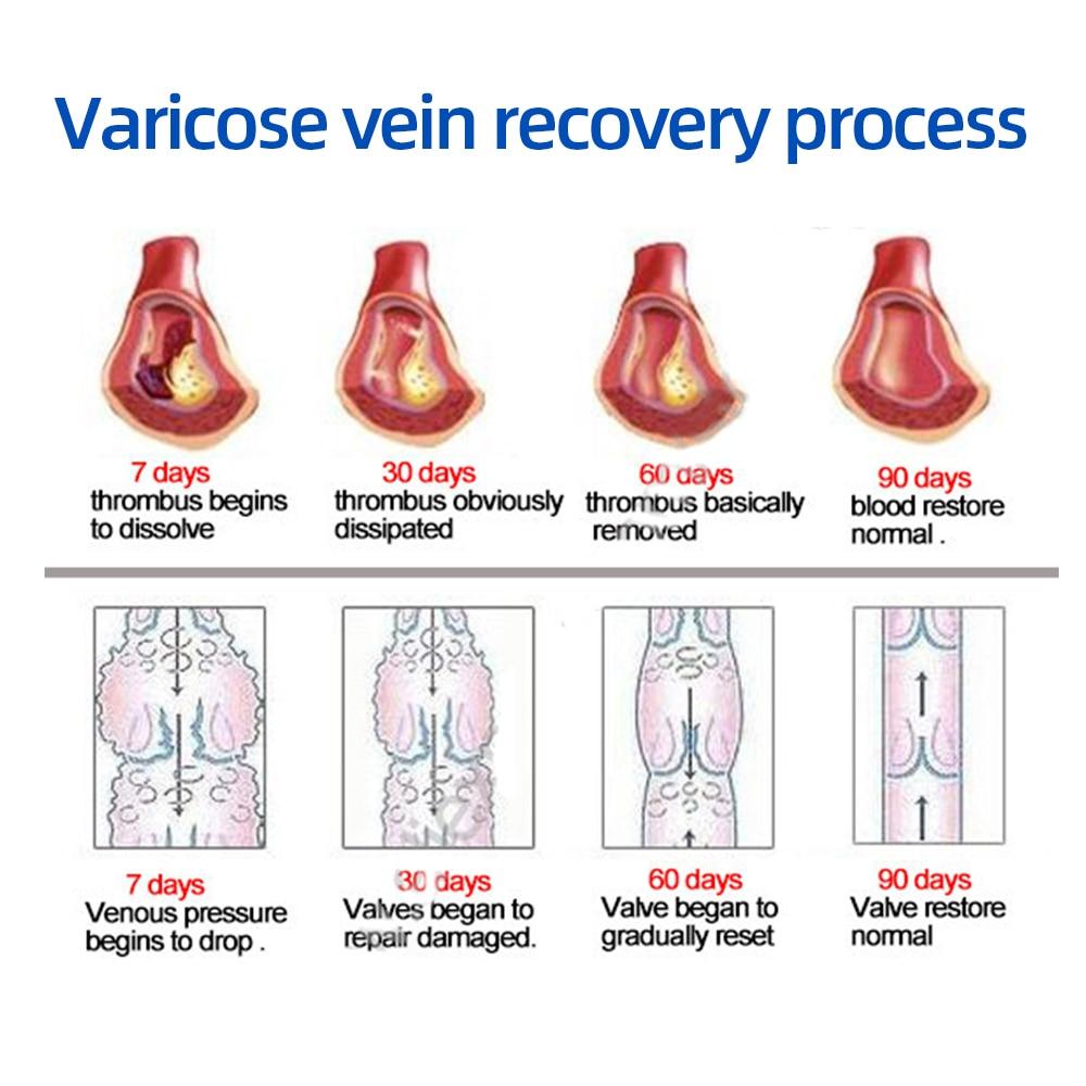 Herbal Medicine For Treating Varicose Vasculitis Phlebitis Spider Legs Veins Pain Massage Cream Treat Varicose Vein Ointment 4