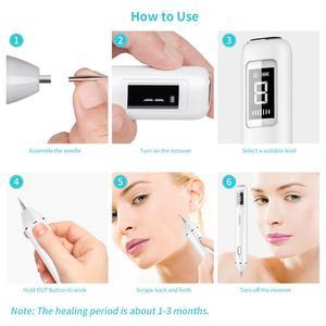 Image 5 - Plasma Pen, Xpreen LCD Laser Plasma Pen machine Wart Remover Mole Tattoo Remover Machine Skin Tag Removal Spot Cleaner