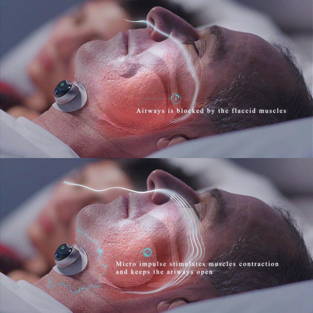 Smart Schnarch Stopper Biosensor Ronco Lösung Apnea monitor CPAP Anti Schnarchen Schlaf Hilfe Anti Schnarchen reduktion Gerät Gesundheit Pflege - 3
