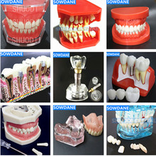 Dental Study Teaching Model Standard Model Removable Teeth Soft Gum ADULT TYPODONT Model dental removable dental model dental tooth arrangement practice model with screw teaching simulation model oral materials