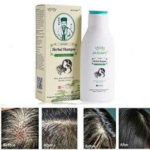 YIGANERJING Zudaifu Scalp cleaning Hair Psoriasis Skin Care Dermatitis Eczematoid Complex Shampoo 120ml