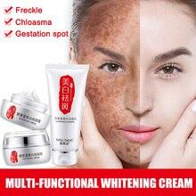Face Skin Whitening Remove Freckle Spot Cream Moisturizers Skin Clean Face Dark Spots Cosmetics JIU55