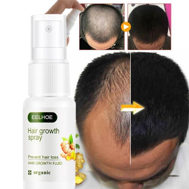 Hair Care Hair GrowthSpray Natural Hair Treatment  Loss Products Conditioner Essential Oil Liquid Health Care Beauty Dense Hair 1