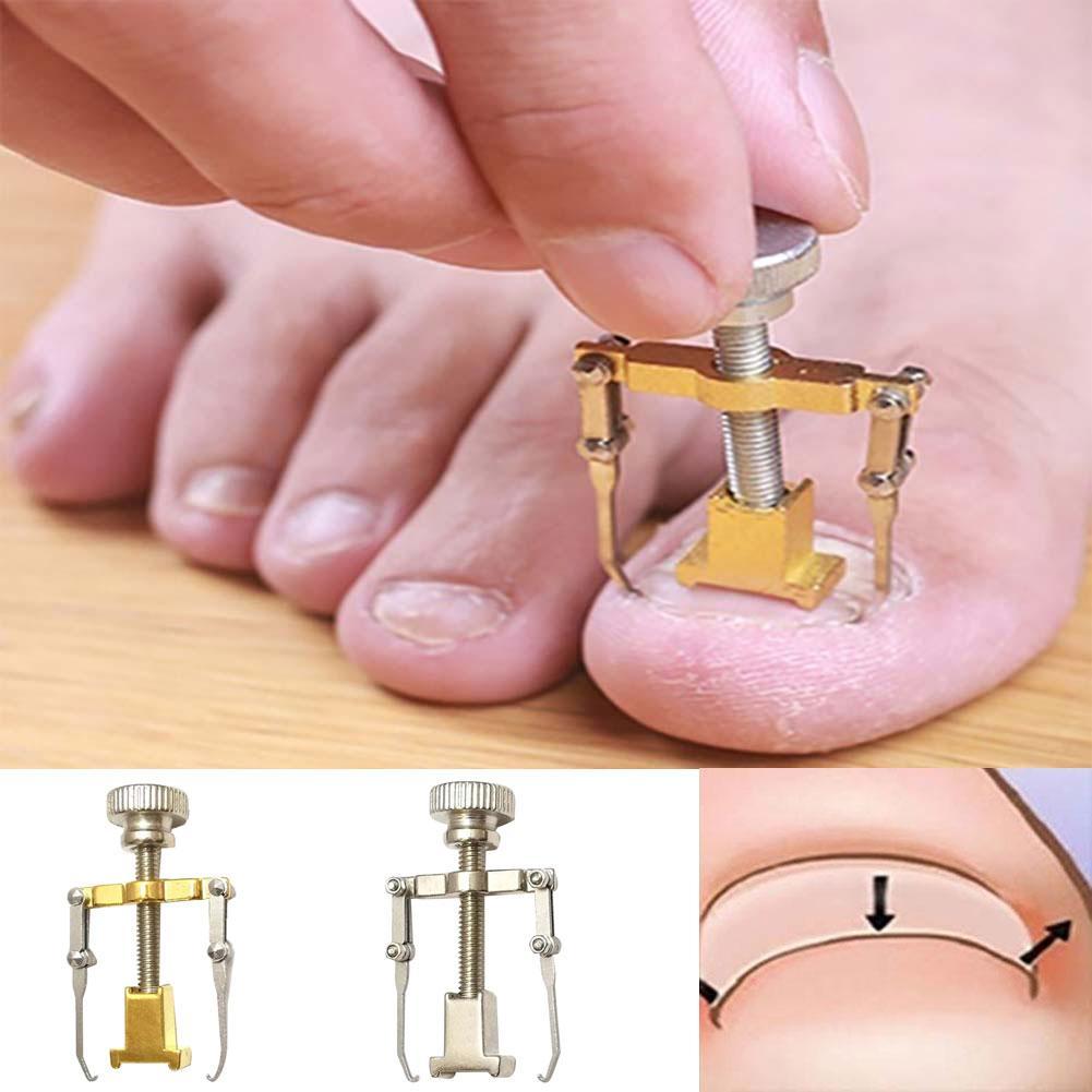 O fixador encravado do dedo do pé recupera a ferramenta do cuidado do prego do pé do pedicure do dispositivo de correção fácil de usar 1