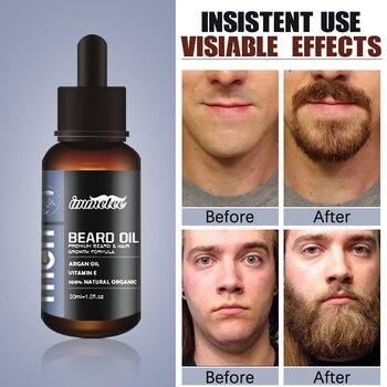 Beard Growth Oil Hair Growth Agent Thickener Hair Beard Care Product Anti Hair Loss Tonic Grow Beard Treatment Hair Serum 1