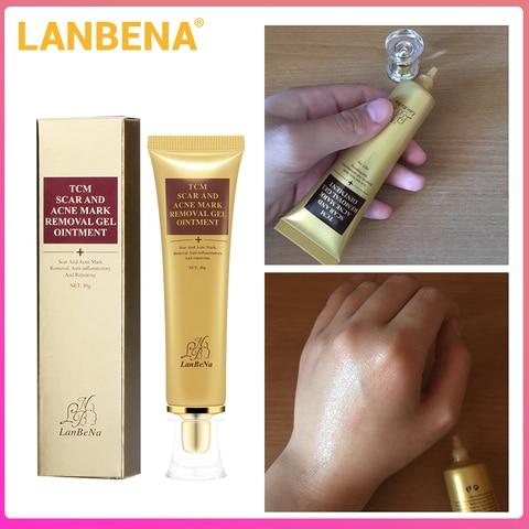Whitening Cream Lanbena Acne Scar Stretch Marks Remover Cream Skin
