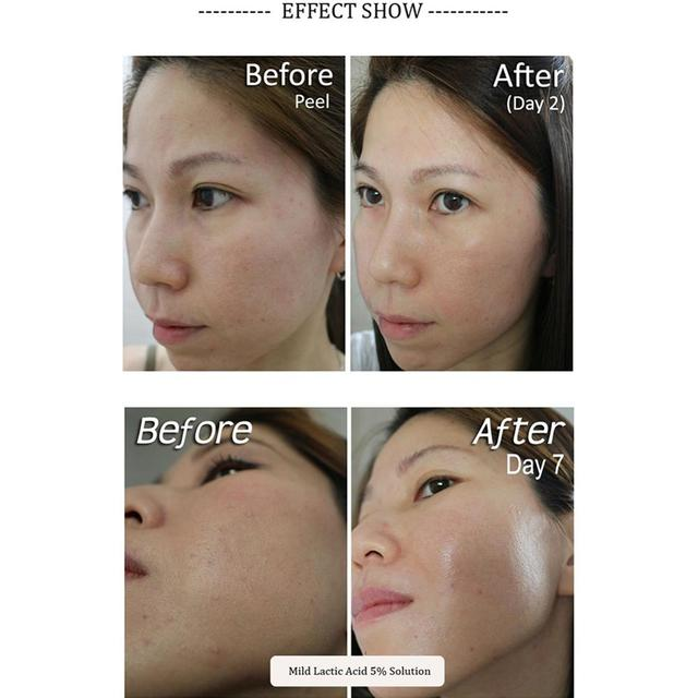 9 Kinds The Ordinary Hydration Skin Moisturizing Formula Plump Smooth 30ml Face Serum Exfoliation Remove Scars Blemishes Make up 5