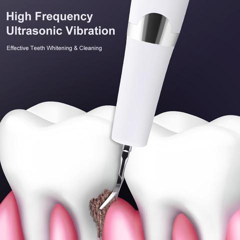 removedor de calculo dente eletrico alta