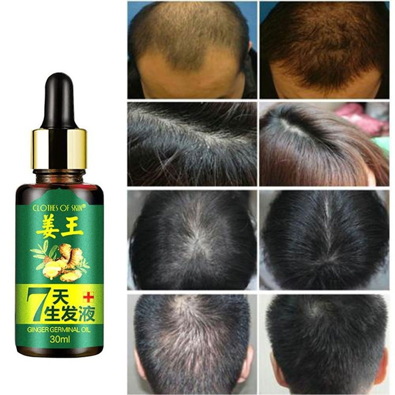 Thickening Shampoo Ginger Hair Care Essence Treatment Loss Products Essential Oil Baldness Treatment Hair Growth Protein image