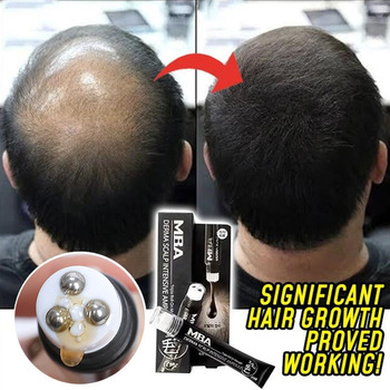Scalp Intense Roll-on Hair Growth Serum Triple Roll Massager Fast Regrow Hair Line Anti Hair Loss Essence Beauty Tools