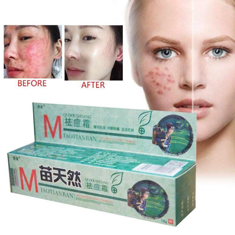 1 Pc Natural Germicidal Removel Cream Mite Moisturize Skin Cream Original Remove Acne Cream Ointment