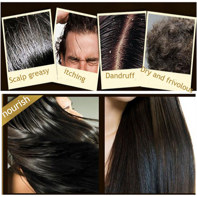 BIOAQUA Polygonum Multiflorum Anti-dandruff Shampoo Nourishing Ufa  Chinese Herbal Hair Growth Repair Damaged Rough Dry Hair 5