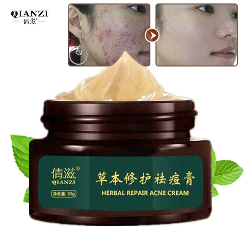 Herbal Acne Cream Anti Pimple Spot Acne Scars Blackhead Removal Cream Whitening Beauty Skin Face Care Creams Acne Treament|acne cream treatment|cream frechacne pimple cream - AliExpress