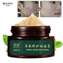 Herbal Acne Cream Anti Pimple Spot Acne Scars Blackhead Removal Cream Whitening Beauty Skin Face Care Creams Acne Treament сплит система ballu bsli 24hn1 ee eu