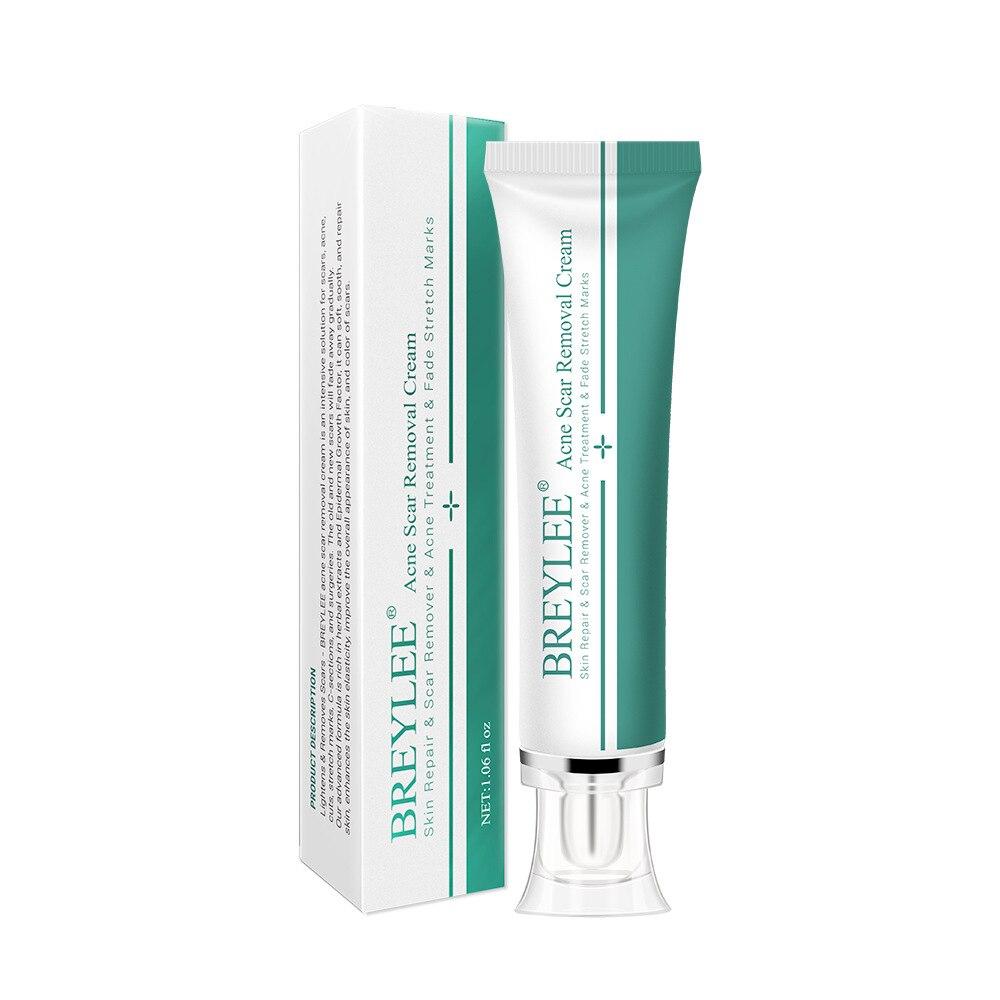 Whitening Essence Cream Acne Scar Removal Cream Face Skin Repair Skin Care Scar Acne Treatment Remove Stretch Marks 30g