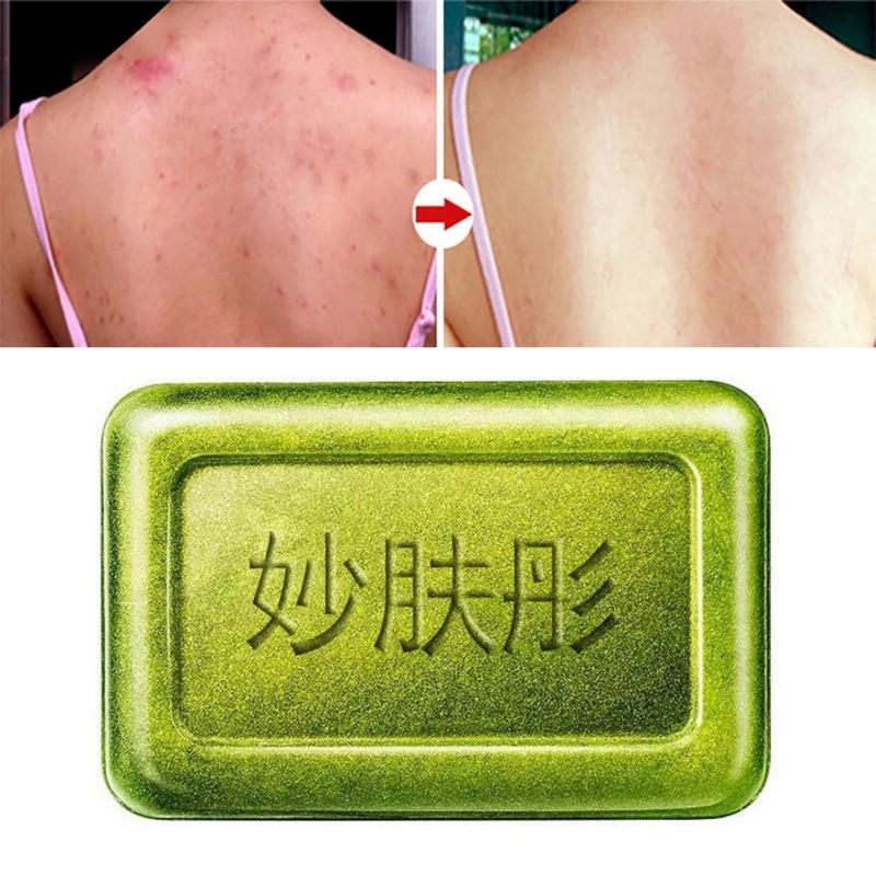 Tea Tree Oil Mites Removal Soap Moisturizing Oil-control Anti-mites Shrinking Pores Handmade Soap