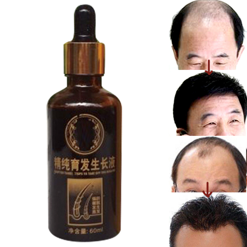 Andrea Hair Care Fast Powerful Nourish Growth Products Regrowth Essence Liquid Treatment Preventing Hair Loss Oily Baldness