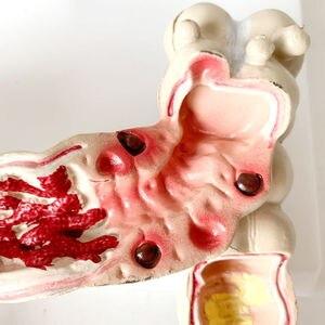 Image 5 - Colorectale Laesie Model Menselijk Colon Snake Dikke Darm Pathologische Ziekten Model Medische Organizer Anatomie