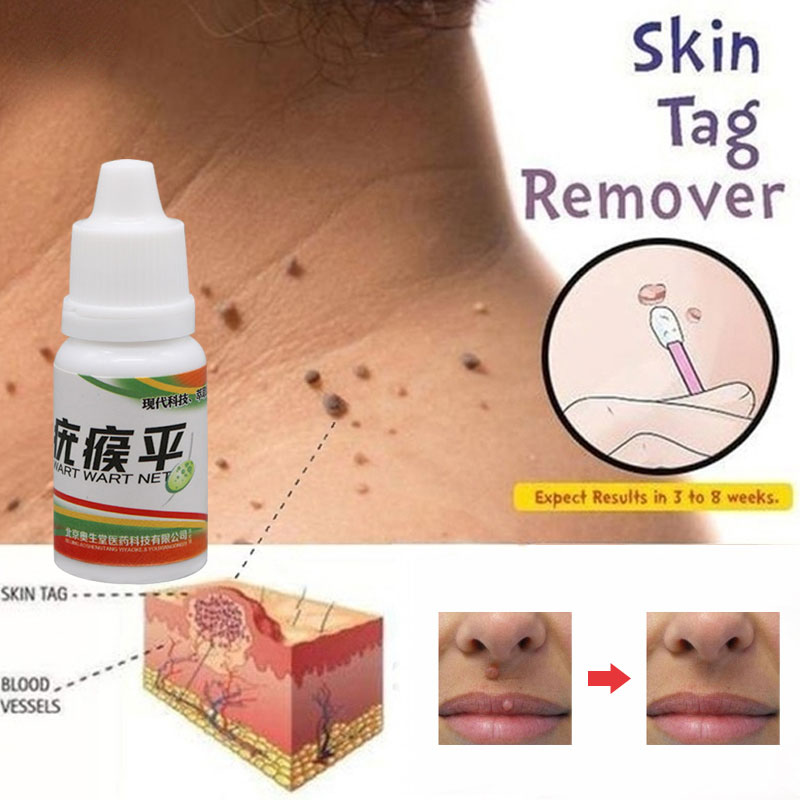 Chinese Medicine Treatment Foot Corn Removal Plantar Warts 12 Hours Tu Kill Liquid Remover Body Black Dots Mole Wart Skin Tag