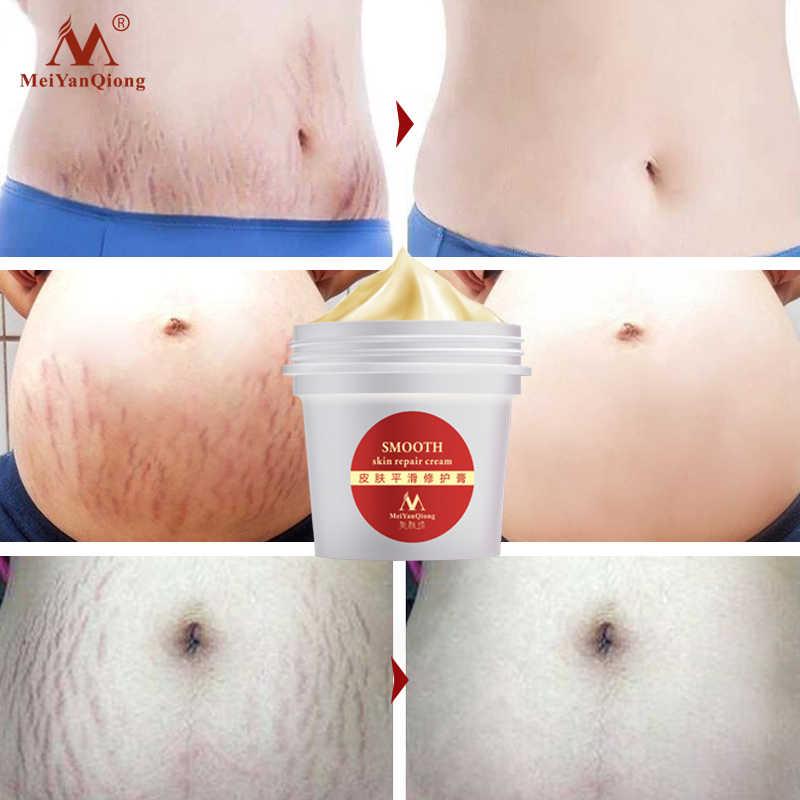 Glatte Haut Stretch Mark Haut Creme Entfernt Mütterlichen Haut Reparatur Körper Creme Entfernt Postpartale Narbe Pflege Sanfte Feuchtigkeitsspendende