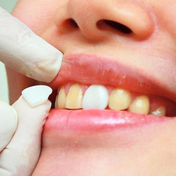 Top selling 50PCS/ 1Bag Dental Ultra Thin Whitening Veneers Resin Teeth Anterior Temporary Crown