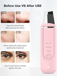Image 5 - Ультразвуковой ионный Очищающий Инструмент InFace, массажный скребок для кожи, лопатка для пилинга, устройство для очистки пор лица