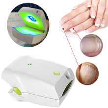 Stop Nail Fungus Low Level Cold Laser Therapy Device Anti Toenail Fungal Onychomycosis Treatment Hom