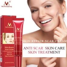 Corrector Face-Cream Stretch Marks Skin-Care Whitening Acne Scar-Removal Cream-Acne-Spots