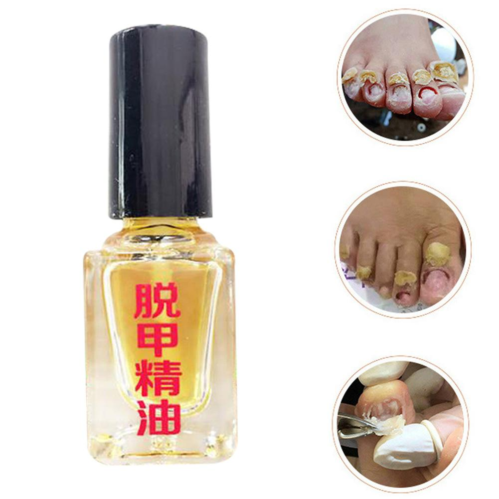 3Pcs Onychomycosis Fungus Treatment Nail Toe Care Anti Fungal Herbal Essence Fast And Effective Treatment Of Onychomycosis. Nice
