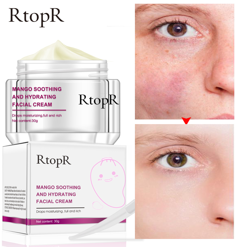 RtopR Mango Moisturizing Facial Cream Anti-Wrinkle Anti Aging Whitening Liquid Tights Nourishing Shrink Pores Hyaluronic Acid