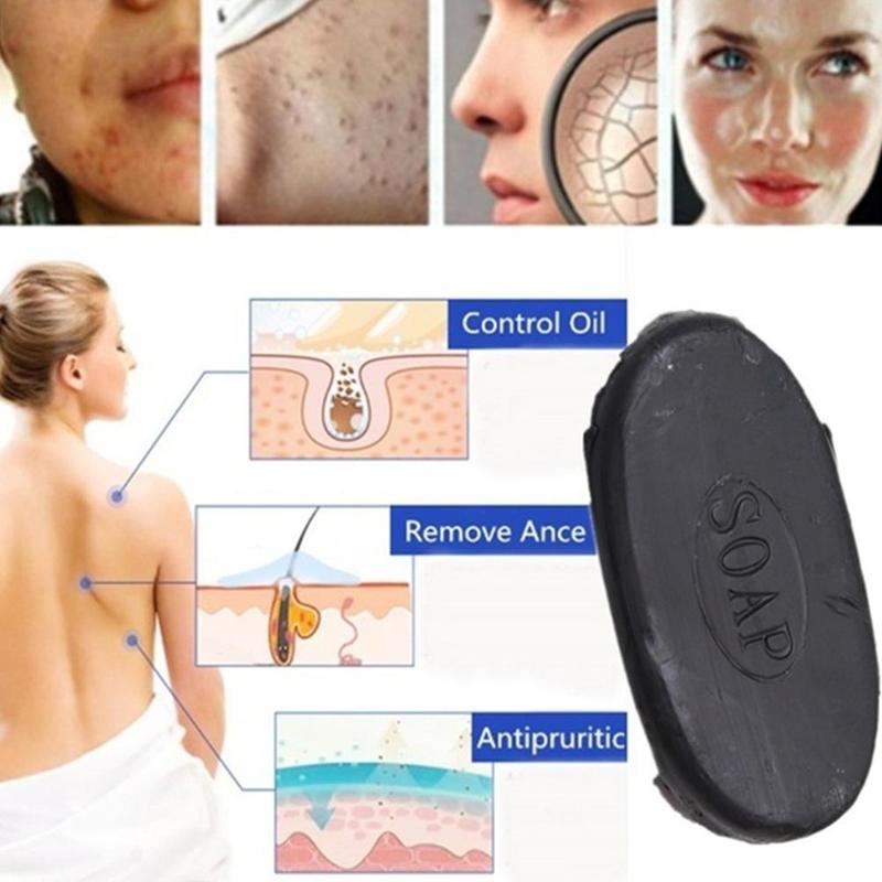 Energy Bamboo Soap Drug Bactericidal Soap Tourmaline Soap Blackhead Remover Oil-control For Femal Face Hand Body Healthy Care