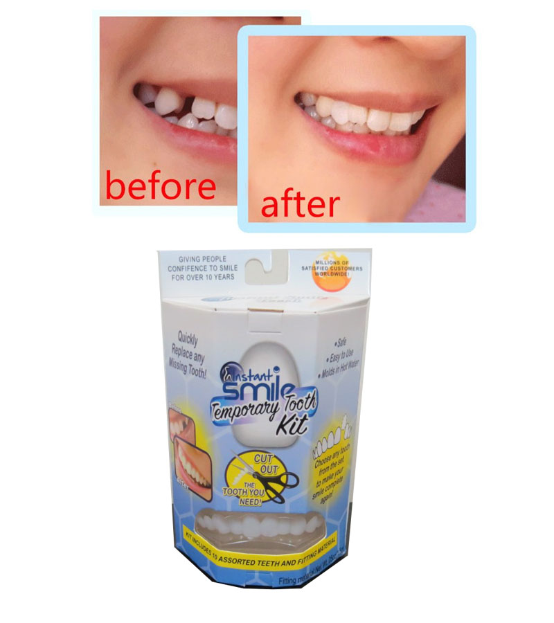 Instant Smile Temporary Tooth Repair Set Kit Teeth Solid Glue Gap Falseteeth Solid Glue Denture Adhesive Teeth Dentist