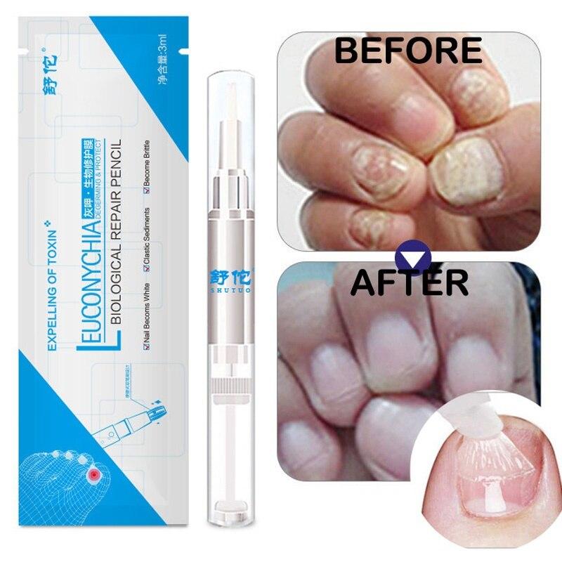 1/3pcs Liquid Nail Antifungal Repair Nail Care Treatment Nail Fungus Toenails Care Nail Cuticle Remover Liquid Nail Growth|Nail Treatments| - AliExpress